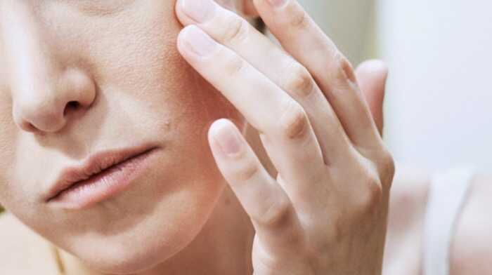 Có thể thử chọn loại kem dưỡng da tốt giá bình dân có 1% hydrocortisone nếu các loại trên không hiệu quả